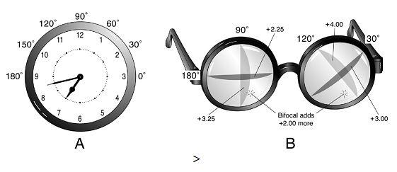 Форма глаз и зрение